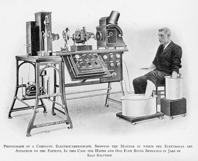 Einthovens EKG.